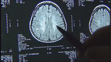 Local brain center providing relief to concussion, dizziness patients
